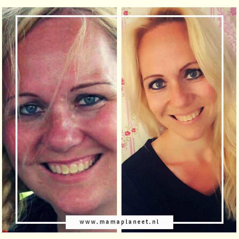 Het verhaal van Patricia | Ik viel 70 kg af zonder medische ingrepen